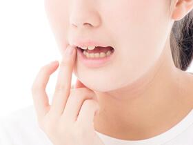 銀歯の詰め物・被せ物をなくしたい