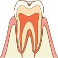C0 初期の虫歯