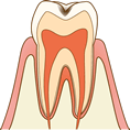 C1エナメル質の虫歯