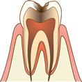 C3 神経まで達した虫歯