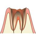 C4 まで達した虫歯