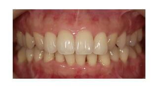 歯茎 の 腫れ に 効く 市販 薬 口コミ